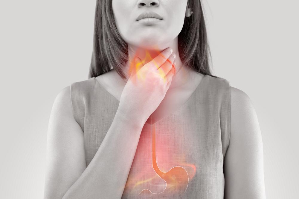 Cara Alami Mengatasi Asam Lambung Naik Ke Tenggorokan